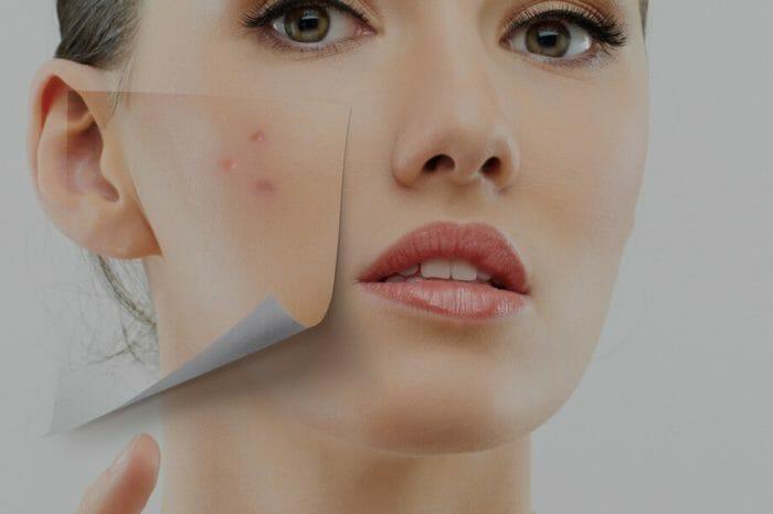 Laseroterapia w leczeniu trądziku, trądzik pospolity, przykładowe zabiegi